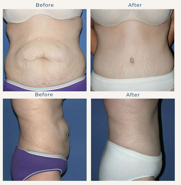 For Body - Edward Love MD
