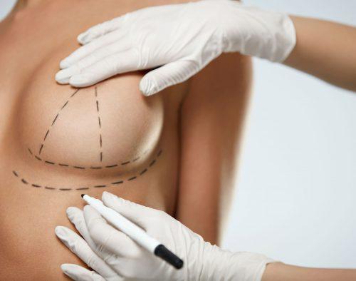 breast-augmentation-img